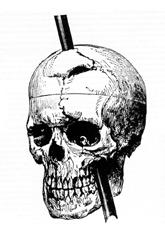 Illustration of Phineas Gage's injury