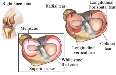 Most meniscus injuries do not repair themselves. That being said, many people go on to be symptom free after a meniscus tear.